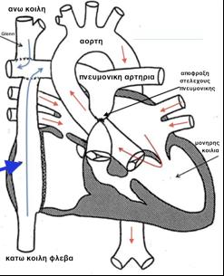 Εγχείρηση Fontan