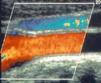 Normal carotid (color display)