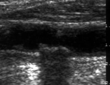 Common carotid artery with atheromatic plaque - Stenosis rate 20% (black and white display)